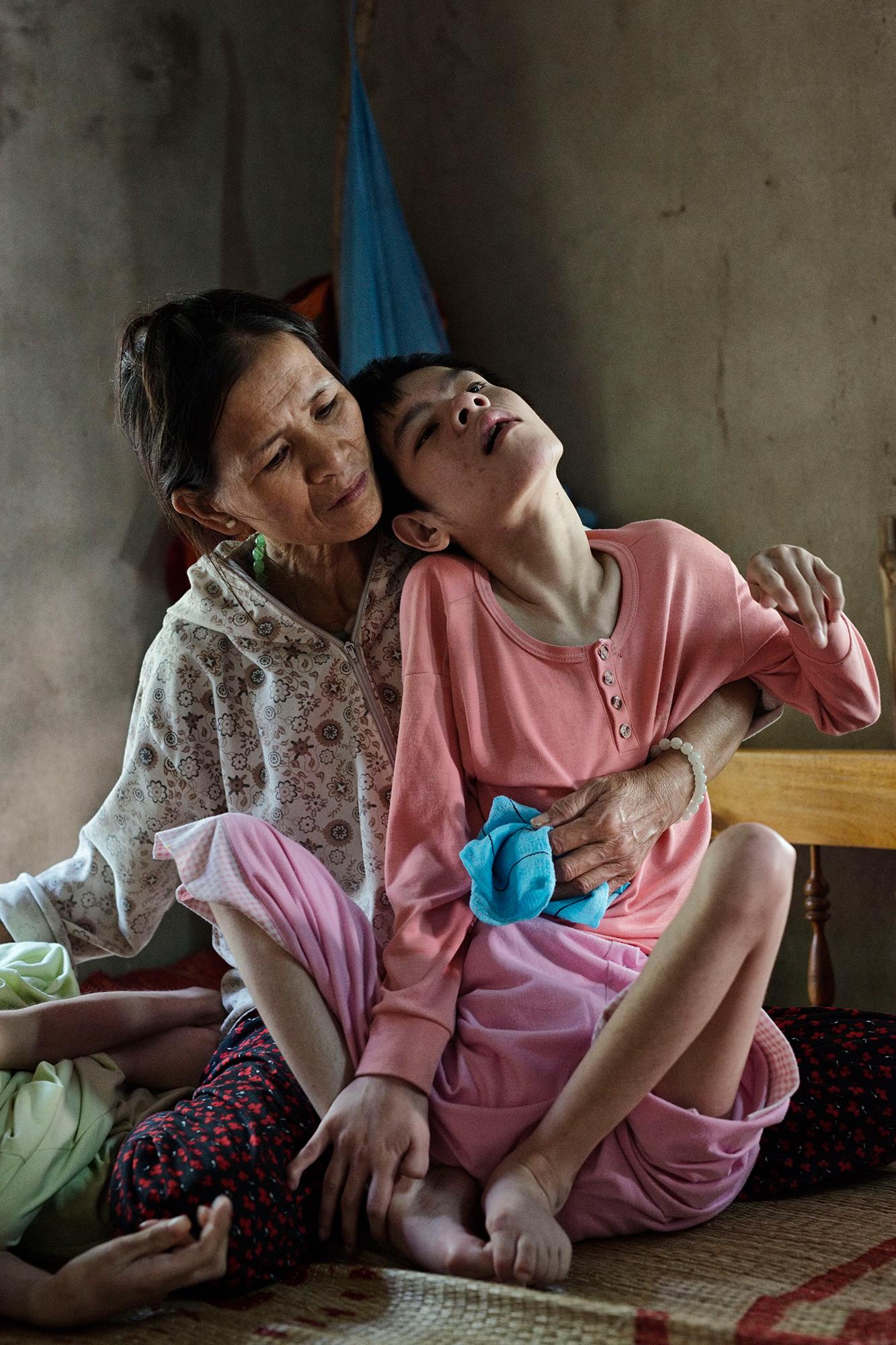 Opfer von Agent Orange: Nguyen Van Bongs Frau Tran Thi Gai (1964) mit Tochter Nguyen Thi Tutet.