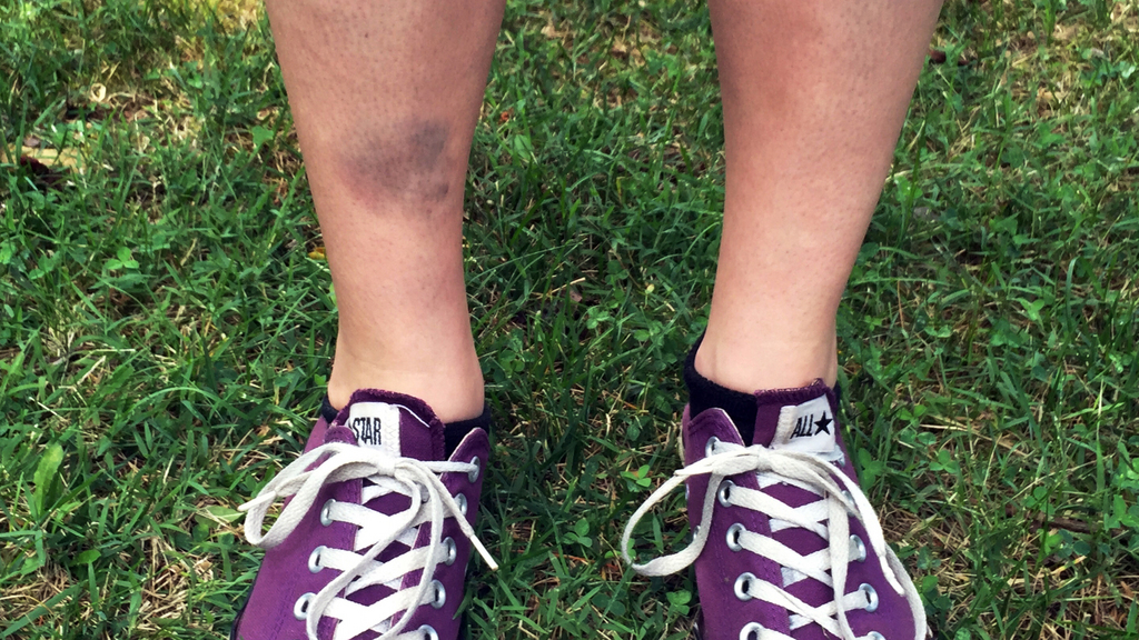 This July 8, 2016, photo provided by Justin Harrison shows the bruised shin of Lindsay Plunkett, a 23-year-old waitress in Asheville, N.C., after she tripped over a cinder block that had been used as a doorstop while playing Pokemon Go, an addictive new game based on cute Nintendo characters like Squirtle and Pikachu. Just days after being made available in the U.S., the mobile game has become the top-grossing app in the App Store. Players have reported wiping out in a variety of ways as they wander the real world - eyes glued to their smartphone screens - in search of digital monsters.(Justin Harrison via AP)