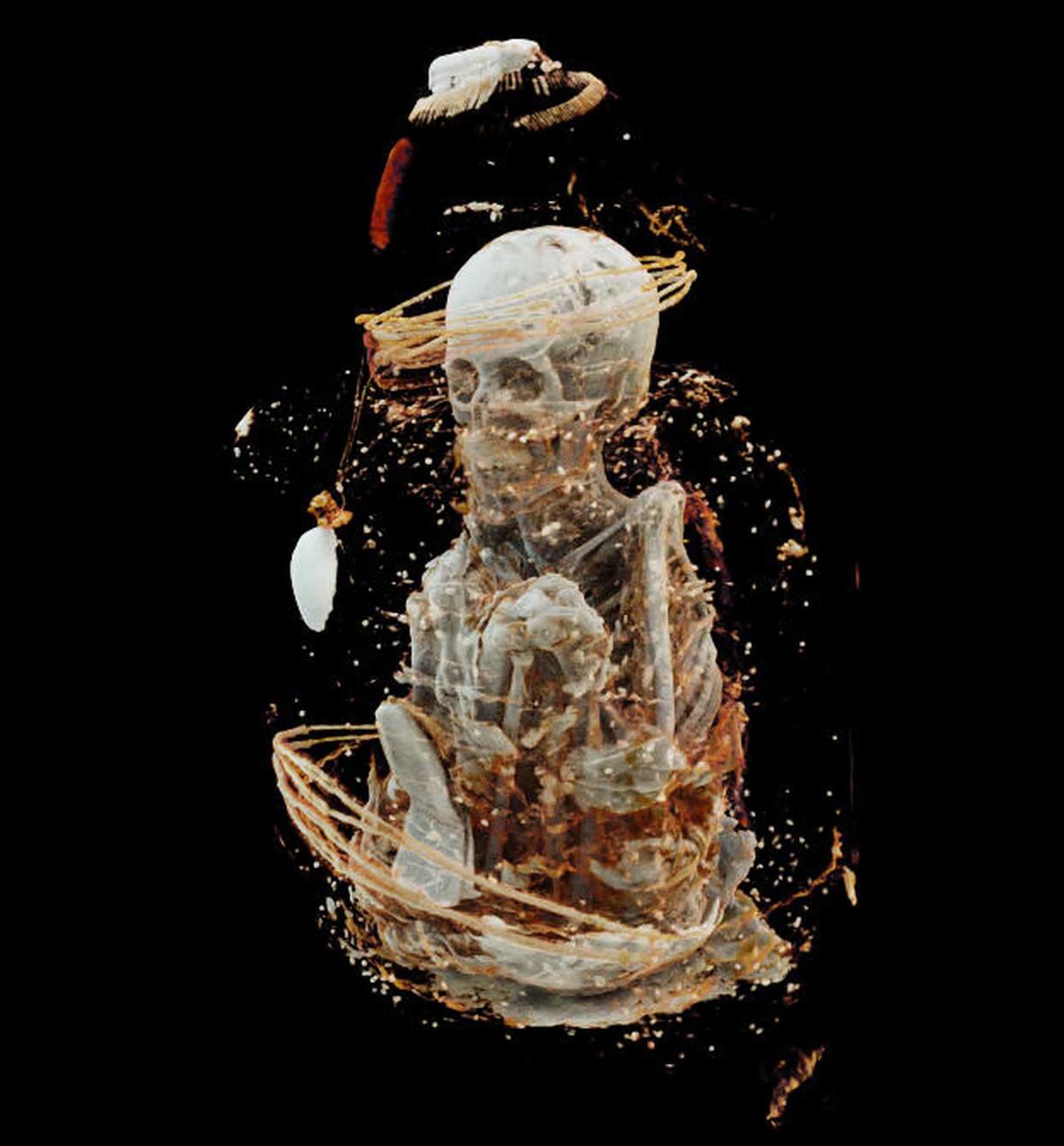 3-D-Rekonstruktion des mumifizierten Knaben.
