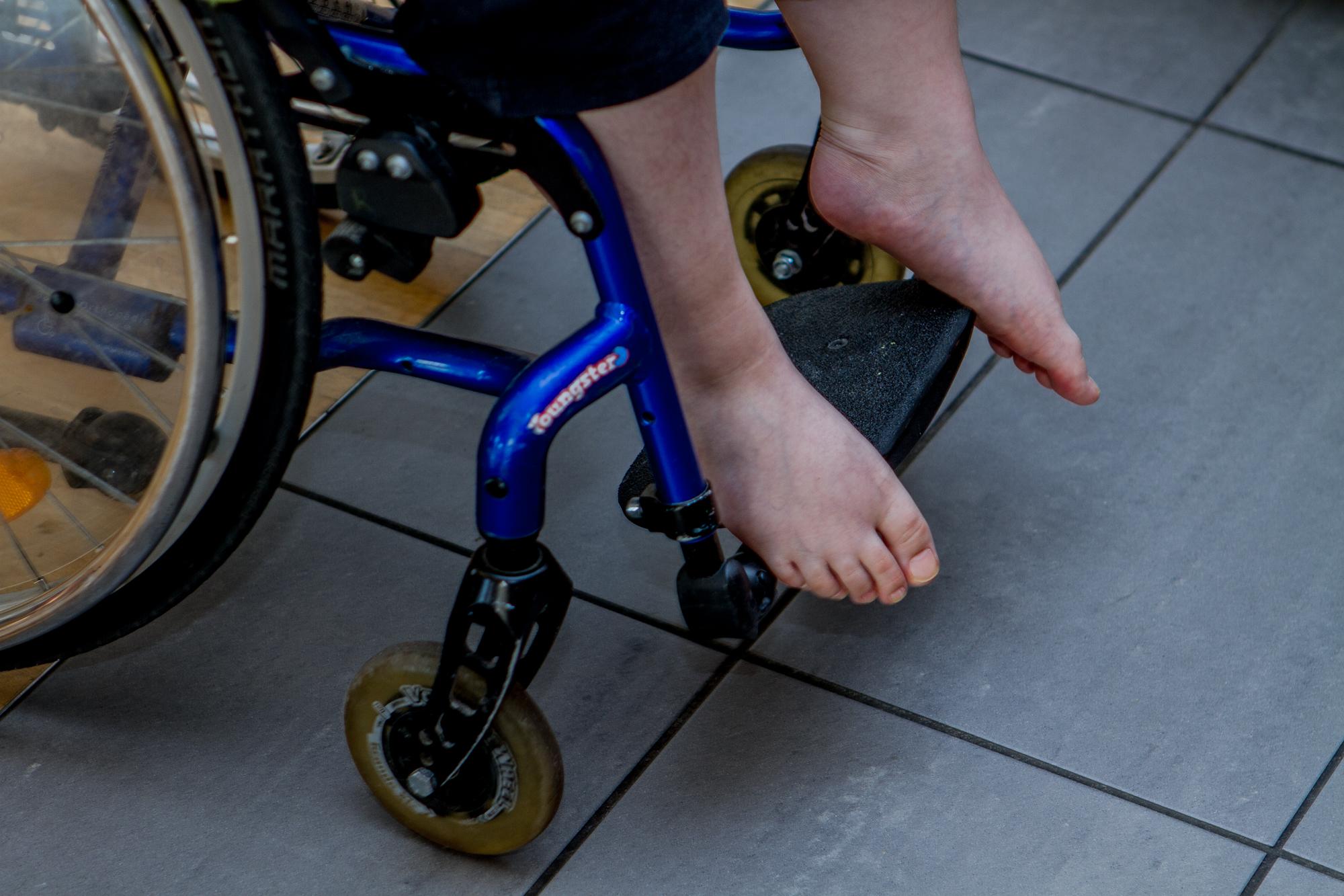 Aufgedunsene Füsse und Beine sind typisch für Duchenne-Patienten.