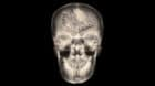 film x-ray skull AP : show normal human's skull